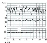 Рис.3. Изменение амплитуд вибраций после установки антивибрационной вставки на Смоленской АЭС